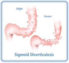 SigmoidDiverticulosis