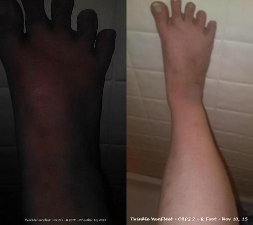 CRPSRSD Awareness Twinkle V. @rsdcrpsfire - R Foot Nov 10, 15_1